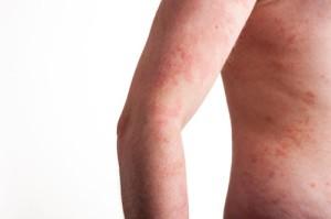 Retikulyarny varicosity prezzo di trattamento