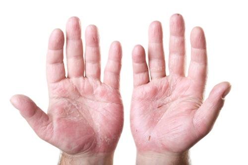 Creme da eczema su mani