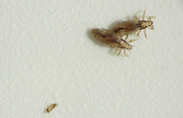 Molti parassiti hanno la struttura del corpo semplificata in confronto a specie di fratello di modo