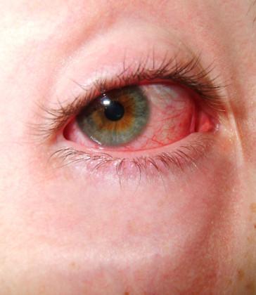 occhi allergie