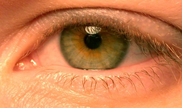 occhi rossi allergia