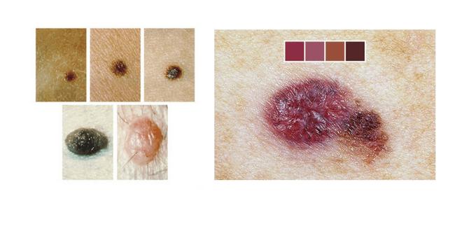 neo di colore viola normale