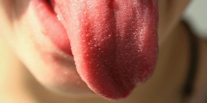 lingua irritata dolorante