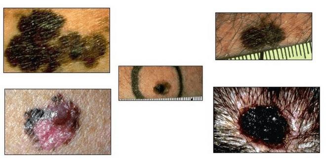 melanoma foto