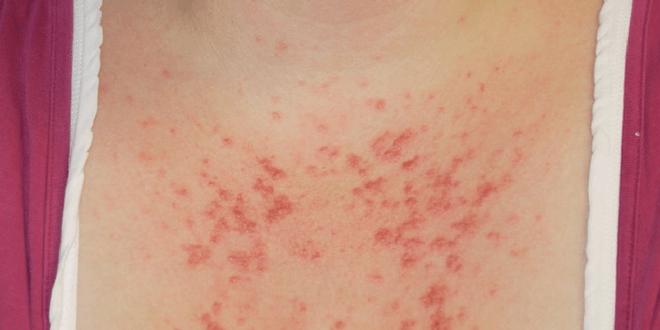 puntini rossi sulla pelle sole