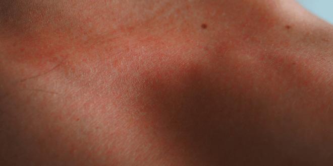 pelle arrossata per il sudore prurito