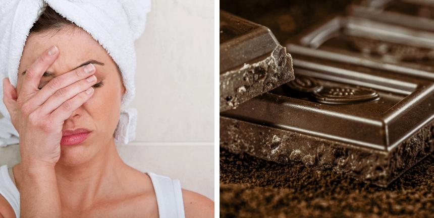 donna con mal di testa da cioccolato