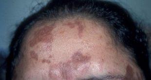 macchie marroni sulla pelle infiammazione